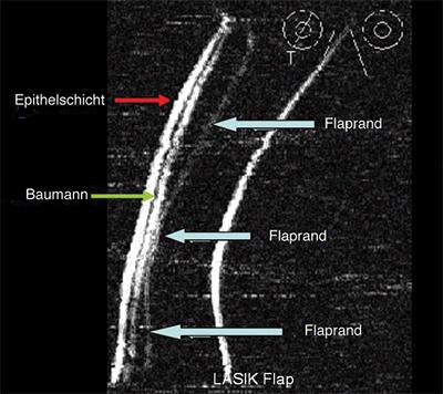 Mikrokeratom Schnitt