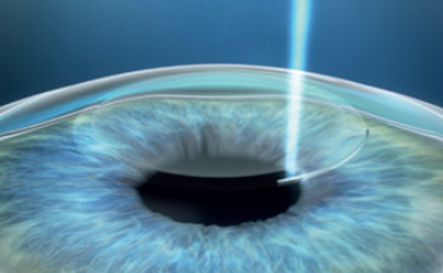 Ablauf der SMILE Augenlaseroperation 3