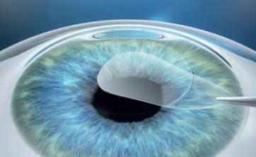 Ablauf der SMILE Augenlaseroperation 2