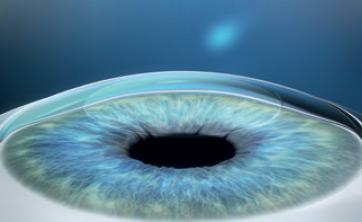 Ablauf der SMILE Augenlaseroperation 1